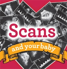 Scans and your baby